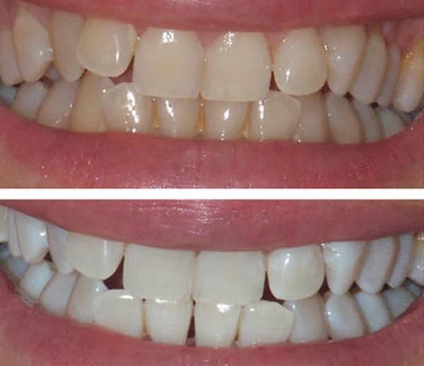 dents deviennent jaunes