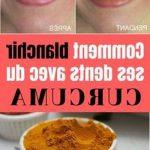 Solution permanent: Gencives dents jaunes | Avis des utilisateurs