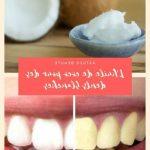 Découvrez traitement: Blanchiment dentaire youtube | Promotion en cours