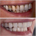 Découvrez soin: Blanchiment dent crest | Qualité Prix