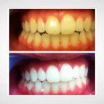 Découvrez solution: Blanchir dent huile essentielle | Test complet
