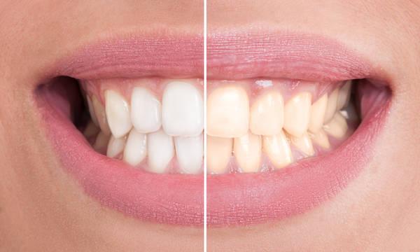 blanchir dents maison