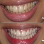 Solution permanent: Blanchir dents sans risque | Avis des clients