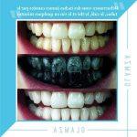 Découvrez solution: Dents jaunes jeune | Test & avis