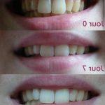 Solution permanent: Blanchiment dentaire white care avis | Avis & prix