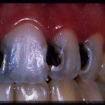 Découvrez solution: Blanchiment dent opalescence | Qualité Prix