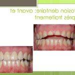 Traitement permanent: Blanchiment dents tours | Test complet