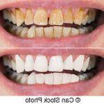 Découvrez traitement: Blanchir dent javel | Composition