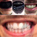 Découvrez solution: Blanchir dents huile de coco bicarbonate | Fiche technique