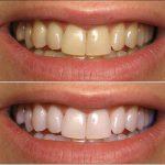 Découvrez traitement: Blanchiment dentaire sans peroxyde avis | Test complet
