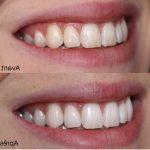 Découvrez solution: Dents jaunes nicotine   Promotion en cours