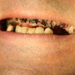 Découvrez solution: Blanchiment dentaire pas cher | Qualité Prix