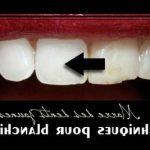 Découvrez traitement: Blanchiment dentaire ultrason | Test & opinions