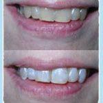 Découvrez solution: Blanchir une dent grise naturellement | Code promo