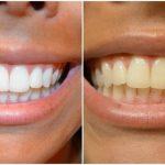 Soin définitif: Blanchiment dent thibault | Notre évaluation