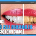 Soin permanent: Blanchiment dentaire qwartz | Avis & prix