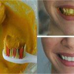 Soin permanent: Blanchiment dentaire st etienne | Avis & prix