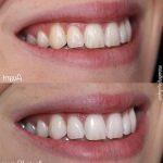 Découvrez solution: Blanchiment dentaire maison avis | Test complet