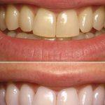 Découvrez traitement: Blanchir dents sensibles | Code promo