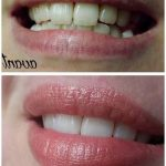 Soin définitif: Blanchir ses dents sur photoshop | Avis des clients
