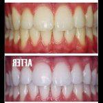 Traitement définitif: Blanchiment dentaire maison naturel | Avis des forums