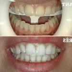 Découvrez solution: Dents jaunes après appareil dentaire | Test & recommandation