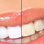 Découvrez solution: Blanchiment dents gouttière dentiste | Test & recommandation