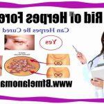 Traitement permanent: Herpes bouche femme enceinte | Code promo