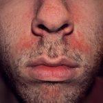 Soin permanent: Meiux que valtrex pour la prévention de l'herpès - nadine | Test & opinions