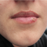 Découvrez soin: Herpes labial vinaigre de cidre | Avis & prix