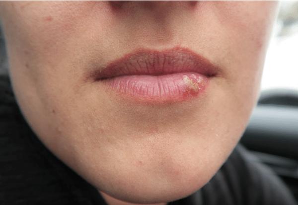 soigner l'herpès labial - moins d'herpès labial