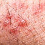 Découvrez soin: Herpes labial muy hinchado | Qualité Prix