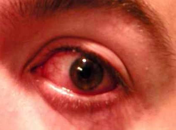 danger zelitrex traitement herpes labial