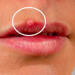 Découvrez solution: Traitement herpes genital pilly | Qualité Prix