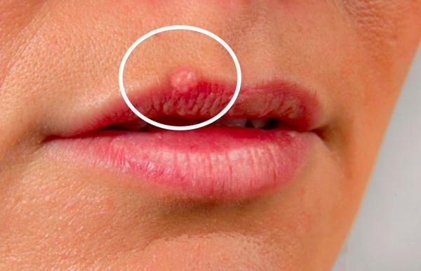 herpes : commandez votre traitement definitif
