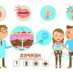 Découvrez soin: Soigner herpes verge | Code promo