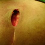 Découvrez traitement: Huile essentielle pour soigner herpes genital | Test & recommandation