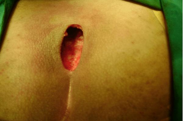 herpes labial y lactancia materna