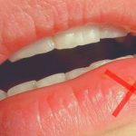 Soin définitif: Soigner lherpès nasal | Test & recommandation