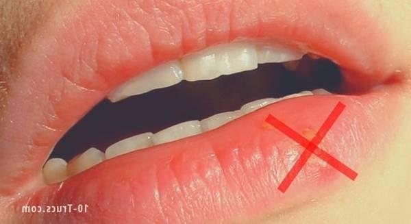 herpes labial inicio