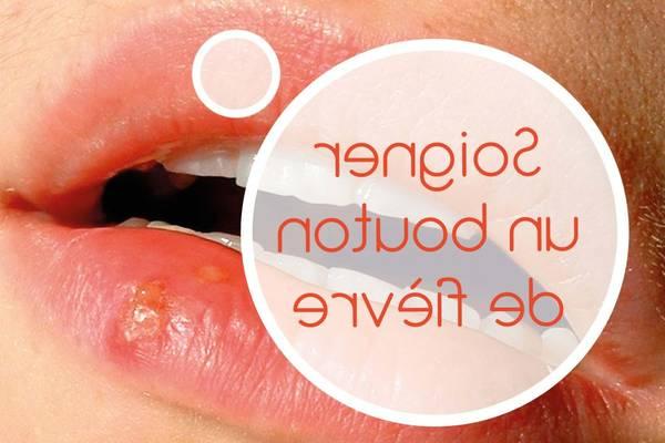 herpes labial qui ne guerit pas