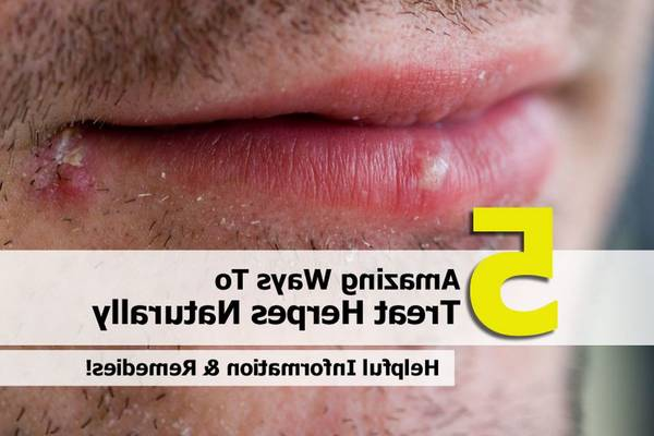 herpes bouche que faire
