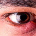 Découvrez soin: Traitement herpes type 1 | Test complet