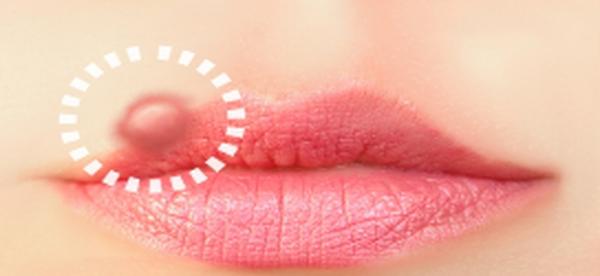 traitement herpes oral