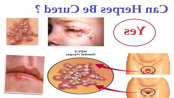 comment soigner un herpes au menton