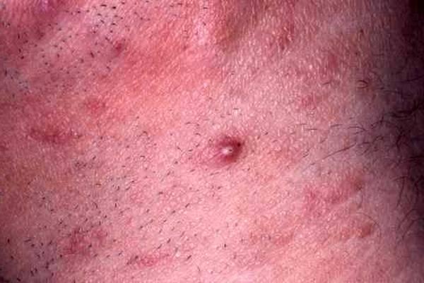 l'herpès génital : une maladie cachée brunet