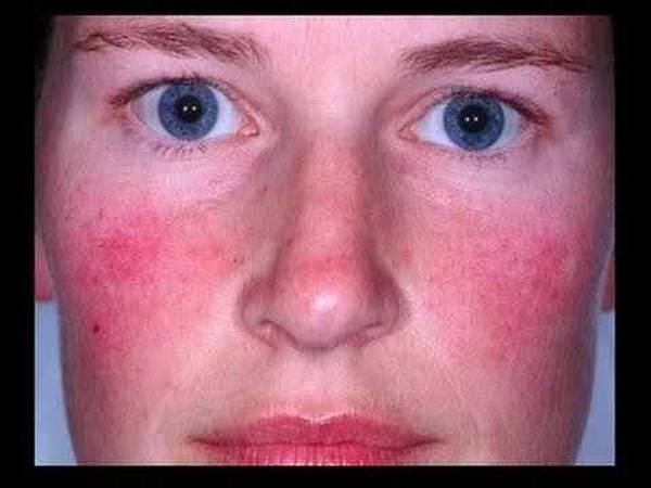 l'herpès génital - maladies transmises sexuellement