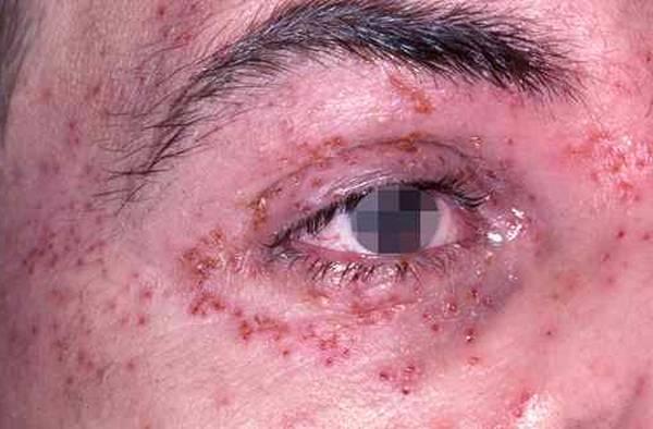 danger valaciclovir sandoz 500 mg dosage