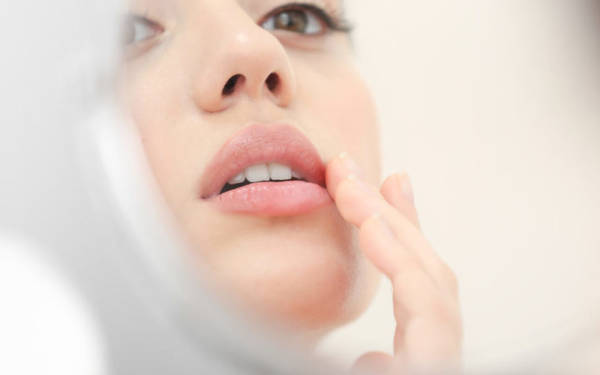 phases herpes labial