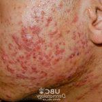 Solution définitive: Traitement fond herpes labial | Avis & prix